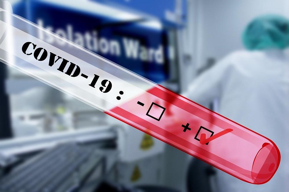 Dr. Sutkowski o zakażeniach: dane napawają optymizmem; pandemia wyraźnie spowalnia