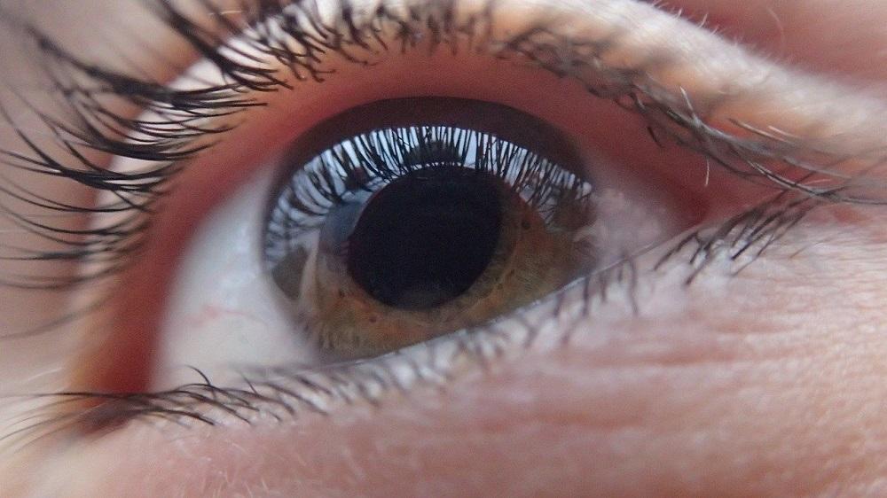 """Zmiany w komórkach na powierzchni oka mogą świadczyć o """"długim Covid"""""""